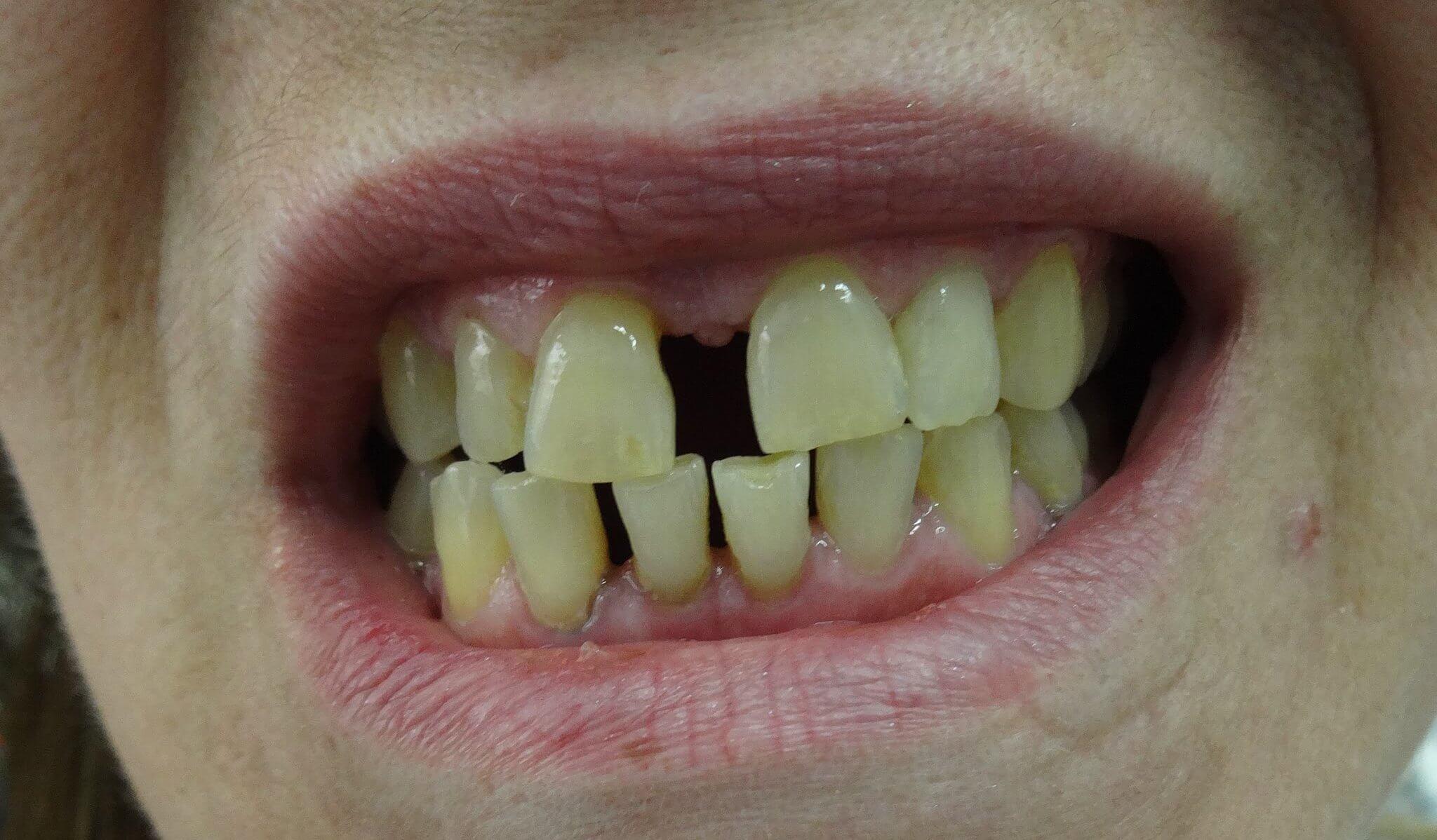 Οδοντίατροι Θεσσαλονίκη