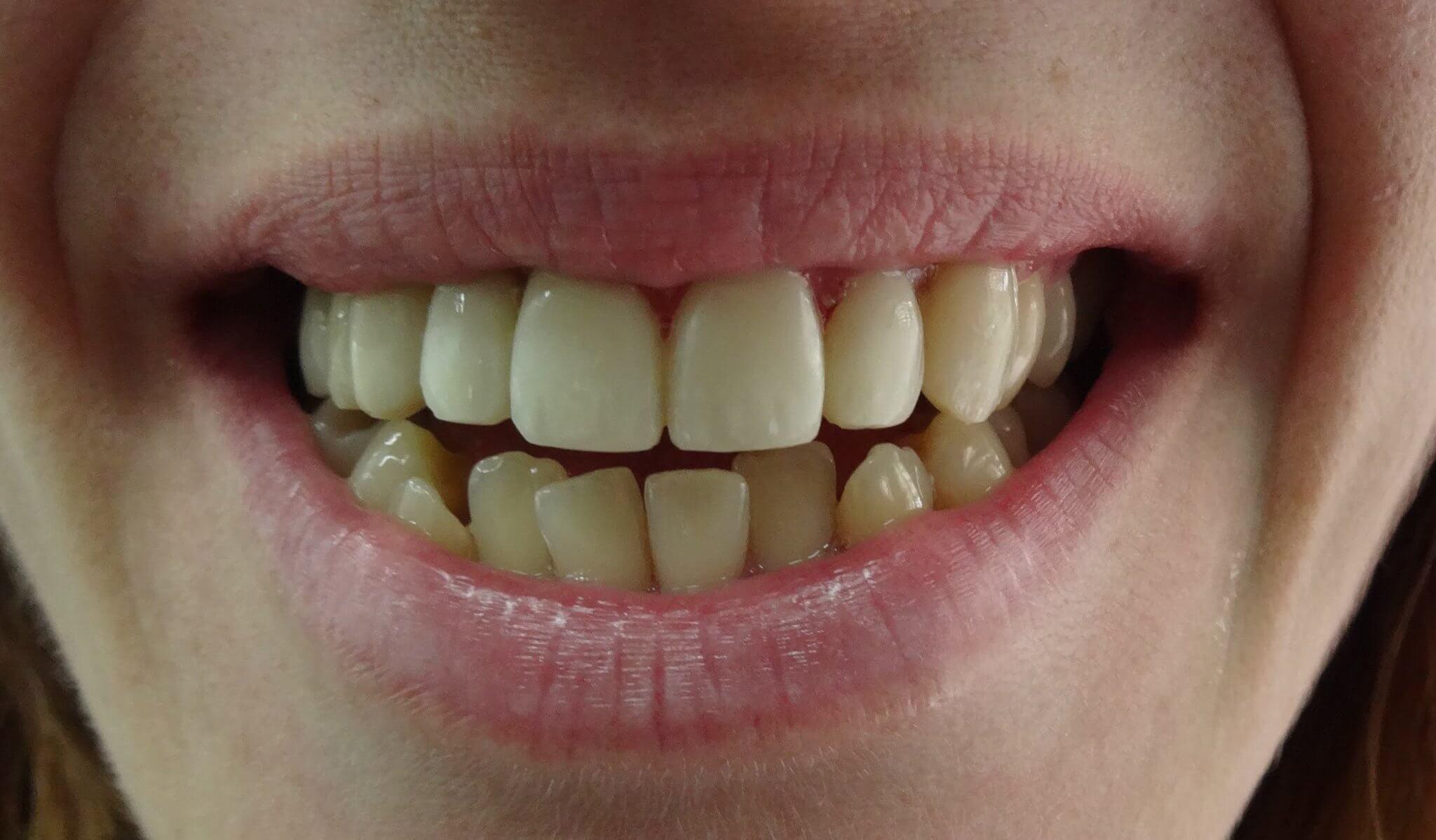 Οδοντίατροι Καλαμαριά